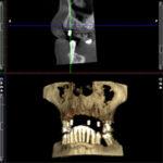 3D Röntgengerät